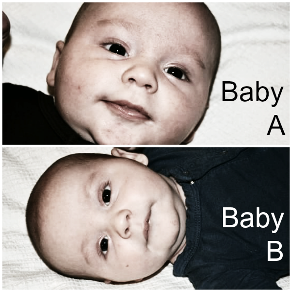 Baby A Baby B